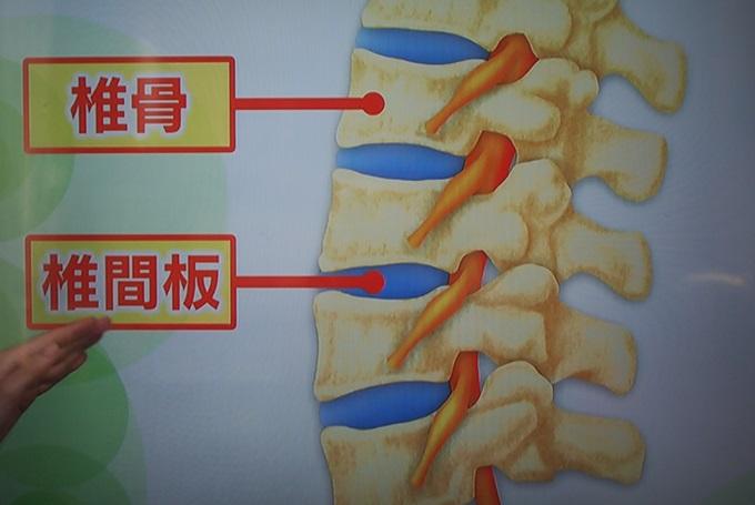 飛びだした椎間板の一部が付近にある神経を圧迫