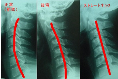 首の骨が逆弯曲