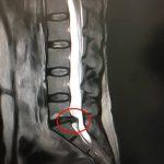 腰椎椎間板ヘルニアL5/S1の画像