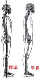 標準の背骨と平骨を比べる